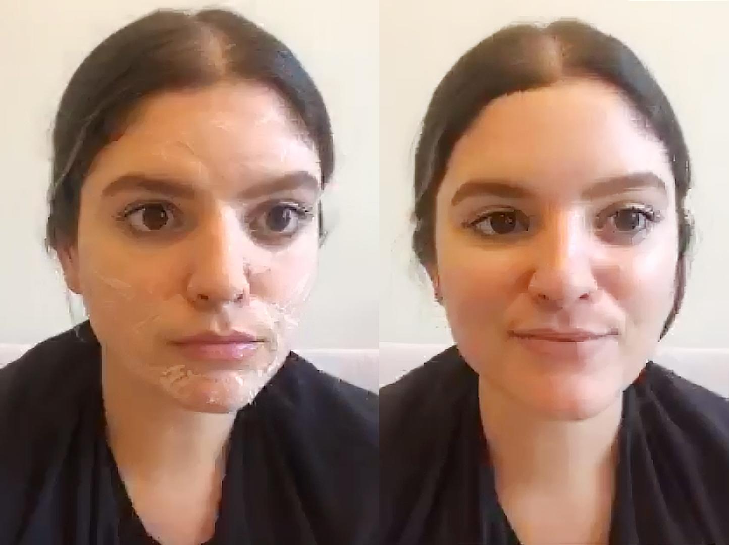 Firming facial muscles